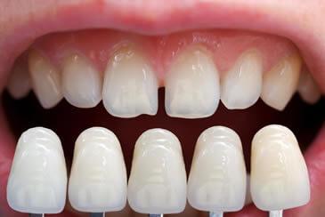 Dentistica - Facetas de Porcelana