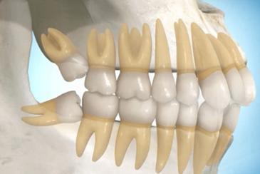 Extração de dente Ciso